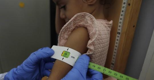 Uno de cada cuatro menores de 5 años en Ecuador no alcanza la talla esperada / Foto: EFE
